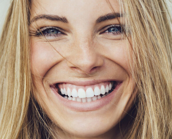 Dental Veneers Narre Warren