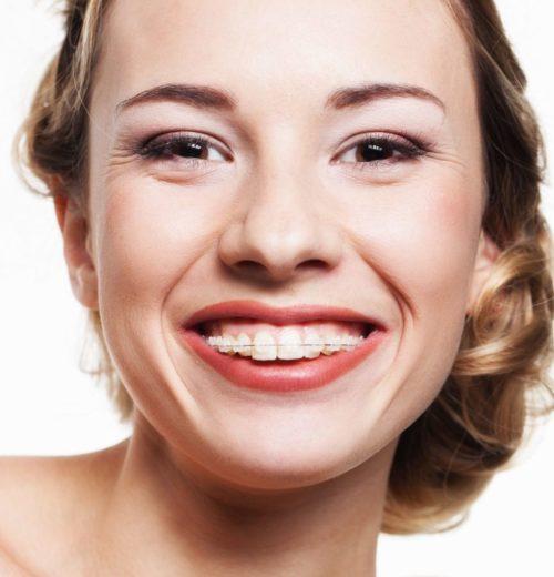 Dentist narre warren braces